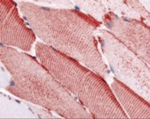 Immunohistochemistry staining of SLC5A10 in skeletal muscle tissue using SLC5A10 Antibody.