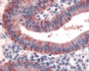 Immunohistochemistry staining of DKK1 in uterus, endometrium tissue using DKK1 Antibody.