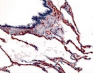 Immunohistochemistry staining of Caveolin-1 in respiratory epithelium, bronchial smooth muscle, and alveoli tissue using Caveolin-1 Antibody.