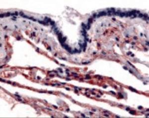 Immunohistochemistry staining of Caveolin-1 in respiratory epithelium and alveoli tissue using Caveolin-1 Antibody.