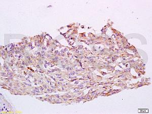 Anti-CYP24A1 Rabbit Polyclonal Antibody