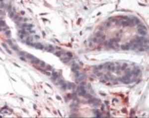 Immunohistochemistry staining of PTK2 in breast tissue using PTK2 Antibody.