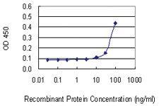 Anti-PRSS21 Mouse Monoclonal Antibody [clone: 20000000000]