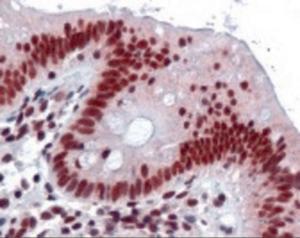 Immunohistochemistry staining of HNRNPK in colon tissue using HNRNPK monoclonal Antibody.