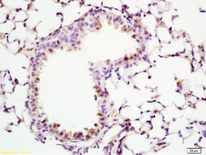 Anti-ADCY10 Rabbit Polyclonal Antibody