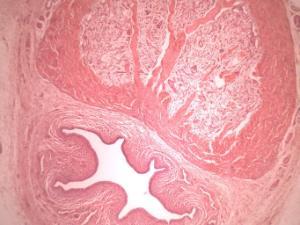 penisul la microscop)