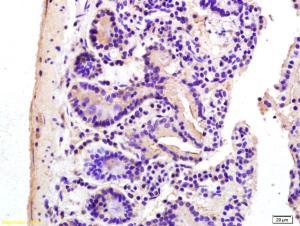 Anti-ADCY7 Rabbit Polyclonal Antibody