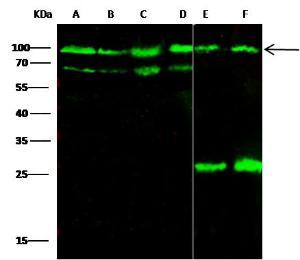 Anti-CD155 Mouse Monoclonal Antibody [clone: 4G5D10D1]