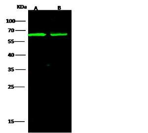 Anti-ALCAM Rabbit Monoclonal Antibody [clone: 008]