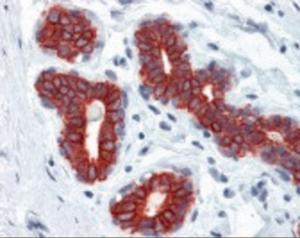 Immunohistochemistry staining of Keratin in breast: formalin-fixed, paraffin-embedded (ffpe)Keratin Monoclonal Antibody.