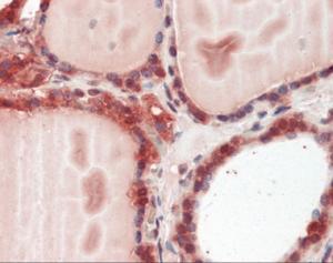 Immunohistochemistry staining of Cathepsin K in thyroid tissue using Cathepsin K Antibody.