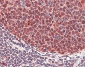 Immunohistochemistry staining of PCNA in colon tissue using PCNA Antibody.