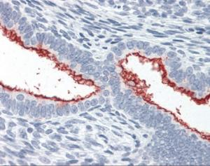 Immunohistochemistry staining of Mucin 16 in uterus tissue using Mucin 16 monoclonal Antibody.