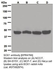 Anti-SOX1 Rabbit Monoclonal Antibody