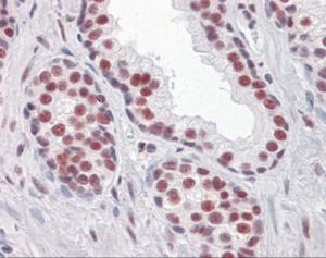 Immunohistochemistry of human prostate tissue stained using RUNX2 Monoclonal Antibody.