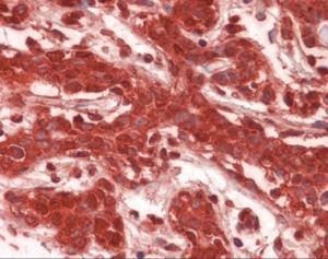 Immunohistochemistry of human breast tissue stained using CLIC1 Monoclonal Antibody.