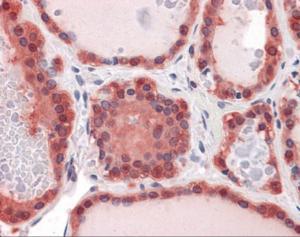 Immunohistochemistry of human thyroid tissue stained using LDHB Monoclonal Antibody.