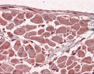 Immunohistochemistry of human heart tissue stained using MBNL1 Monoclonal Antibody.