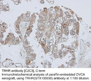 Anti-VIM Rabbit Polyclonal Antibody