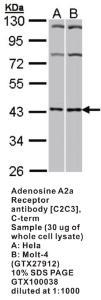 Anti-ADORA2 Rabbit Polyclonal Antibody