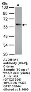Anti-HIF-PH2 Rabbit Polyclonal Antibody