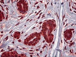 Immunohistochemistry of human breast tissue stained using MDM2 Monoclonal Antibody.
