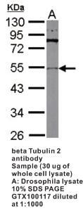 Anti-CSF2 Rabbit Polyclonal Antibody