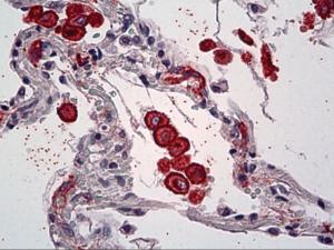 Anti-MRC1 Mouse Monoclonal Antibody