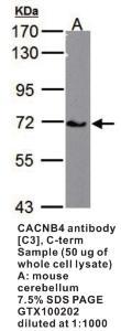 Anti-CACNB4 Rabbit Polyclonal Antibody