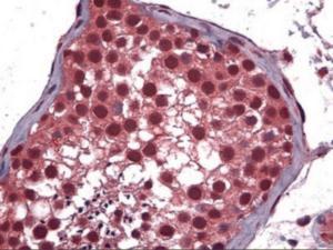 Anti-POU2F2 Mouse Monoclonal Antibody