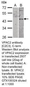 Anti-p-CK Rabbit Polyclonal Antibody
