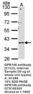 Anti-GPR146 Rabbit Polyclonal Antibody