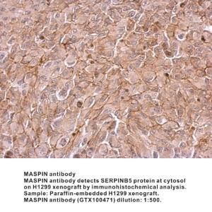 Anti-ISL1 Rabbit Polyclonal Antibody