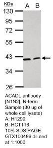Anti-LPL Rabbit Polyclonal Antibody