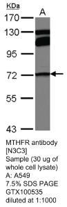 Anti-DES Rabbit Polyclonal Antibody