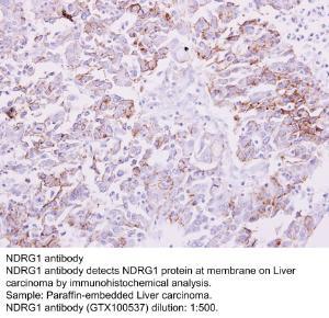 Anti-MB Rabbit Polyclonal Antibody