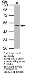Anti-ESR1 Rabbit Polyclonal Antibody