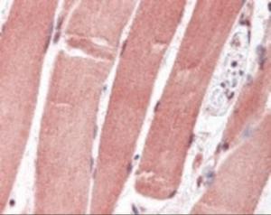 Immunohistochemistry staining of FOXO1 in skeletal muscle tissue using FOXO1 monoclonal Antibody.