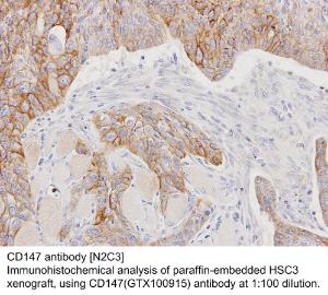 Anti-AFP Rabbit Polyclonal Antibody