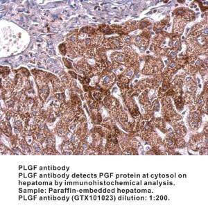 Anti-PLGF Rabbit Polyclonal Antibody