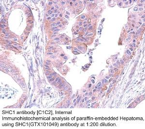 Anti-PIRH2 Rabbit Polyclonal Antibody