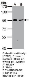 Anti-GSN Rabbit Polyclonal Antibody