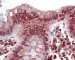 Immunohistochemistry staining of FOXC1 in colon tissue using FOXC1 Antibody.