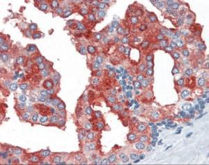 Human prostate tissue stained with PSMA Antibody at 10 ug/mL followed by biotinylated anti-mouse IgG secondary antibody, alkaline phosphatase-streptavidin and chromogen.