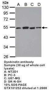 Anti-DTNBP1 Rabbit Polyclonal Antibody