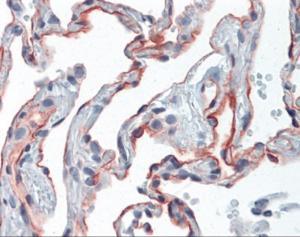 Human lung tissue stained with ICAM1 Antibody, alkaline phosphatase-streptavidin and chromogen.
