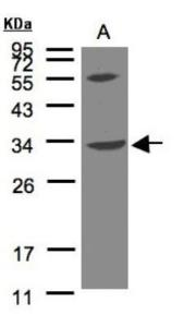 Anti-VPS37C Rabbit Polyclonal Antibody