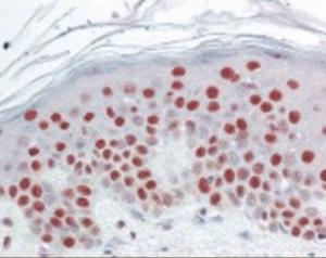 Immunohistochemistry staining of SET in skin tissue using SET Antibody.