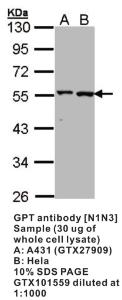 Anti-GPT Rabbit Polyclonal Antibody