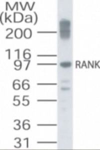 Western blot analysis of TNFRSF11A in RAW cell lysate using TNFRSF11A Antibody.